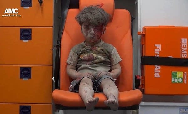 A wounded child sits in an ambulance in Aleppo
