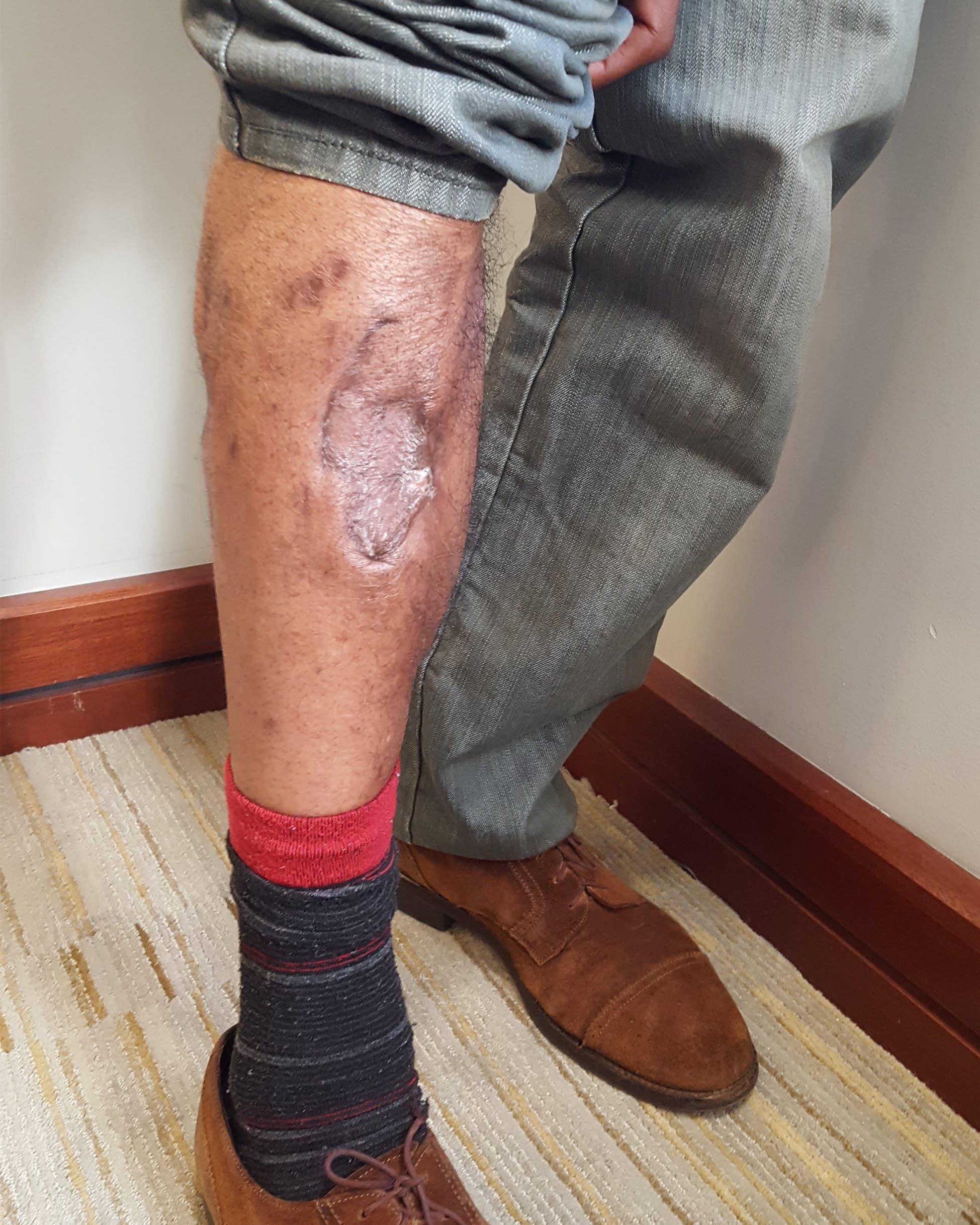 Video: Man bitten by K-9, kicked by St  Paul cop