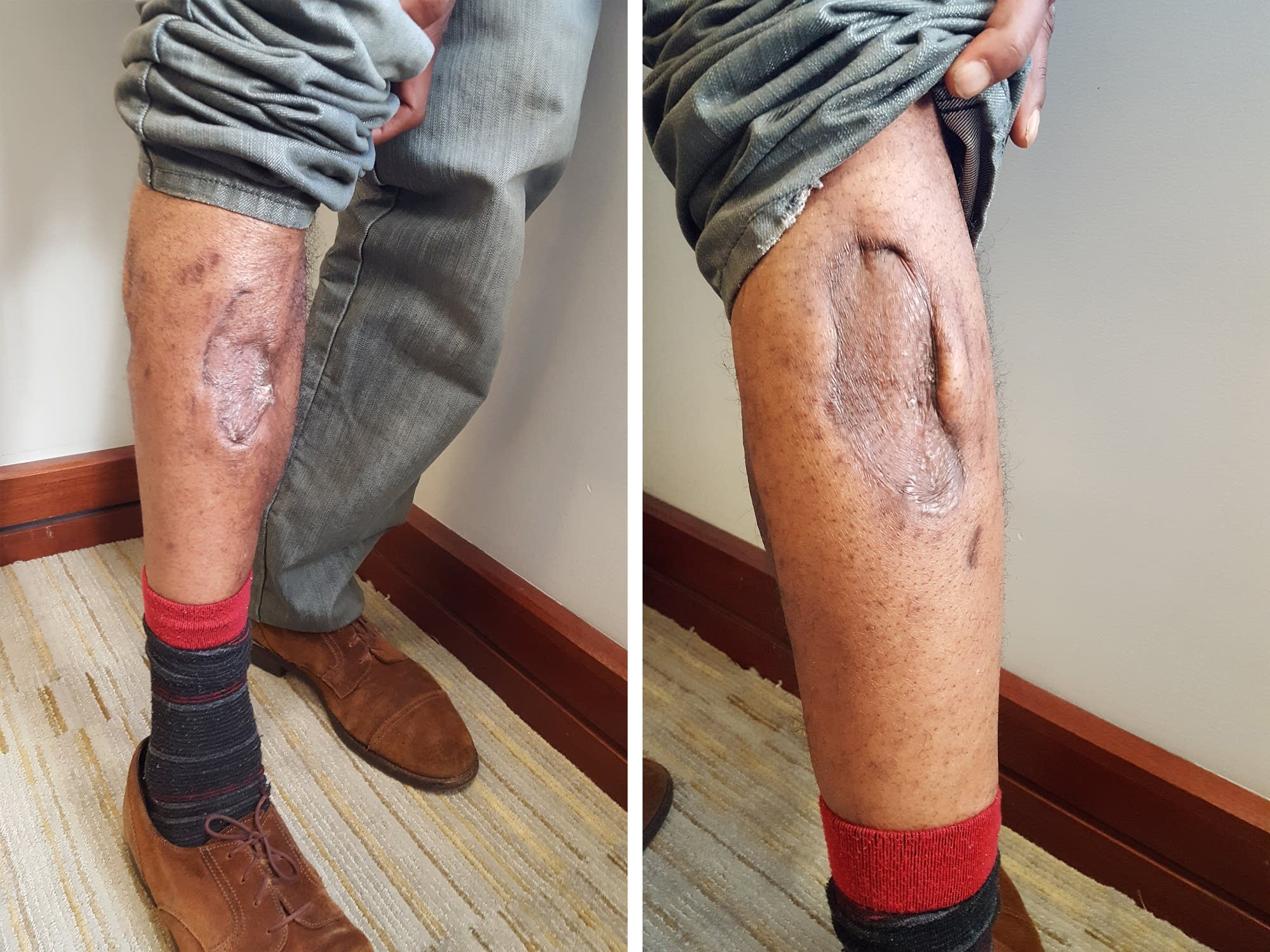 Wounds to Frank Baker's legs after K-9 attack.