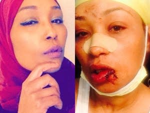 Asma Jama, before and after the attack