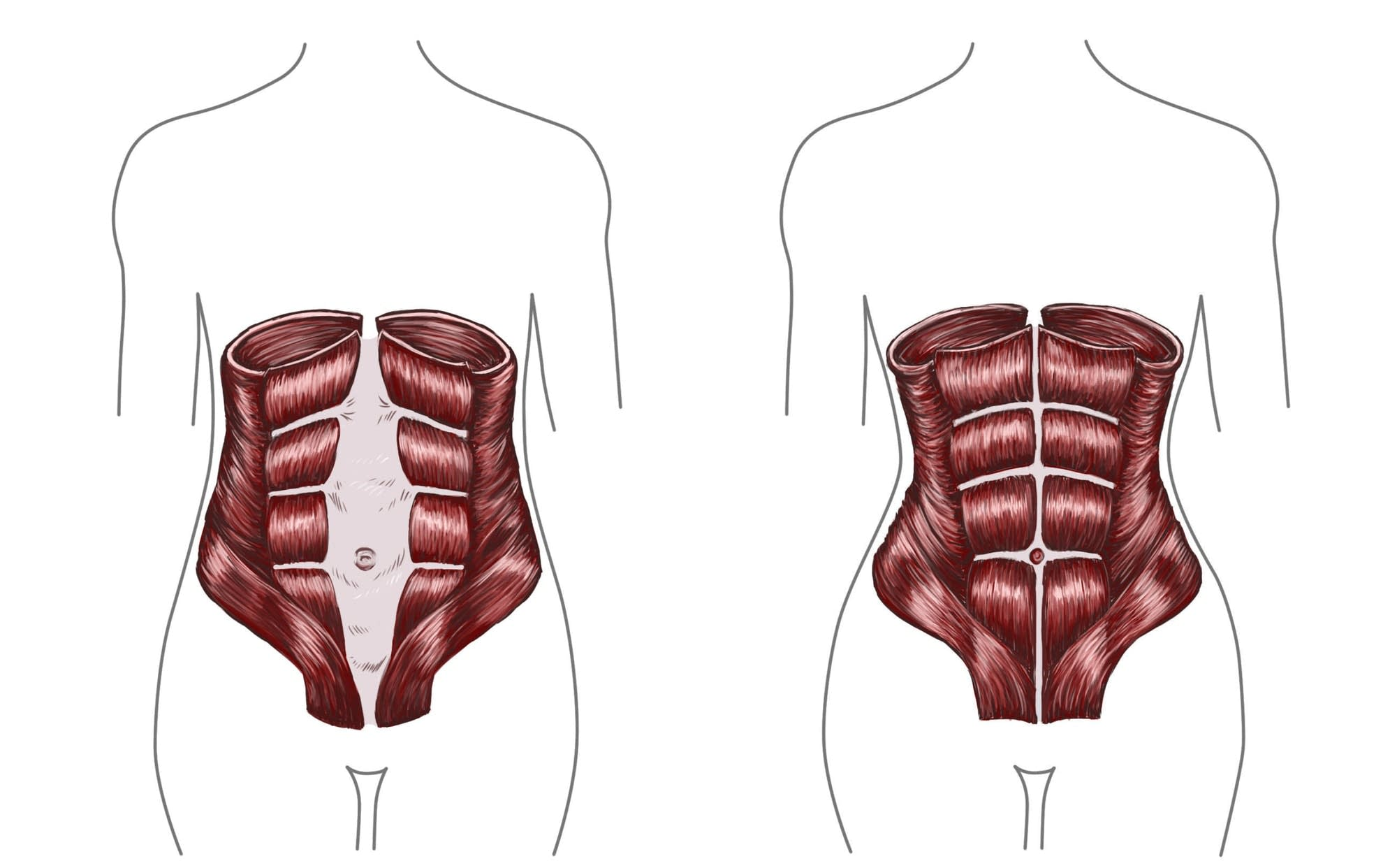 The diastasis recti