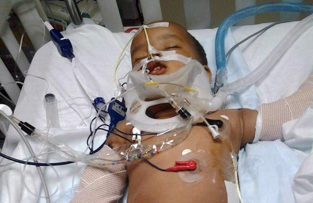 Fifteen-month-old Musa Dayib