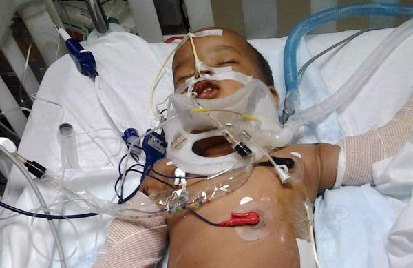 After 'miracle' child survives 11-story fall, questions