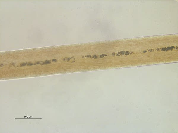 A microscopic view of hair.