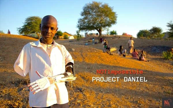 Daniel Omar and his new prosthetic arm