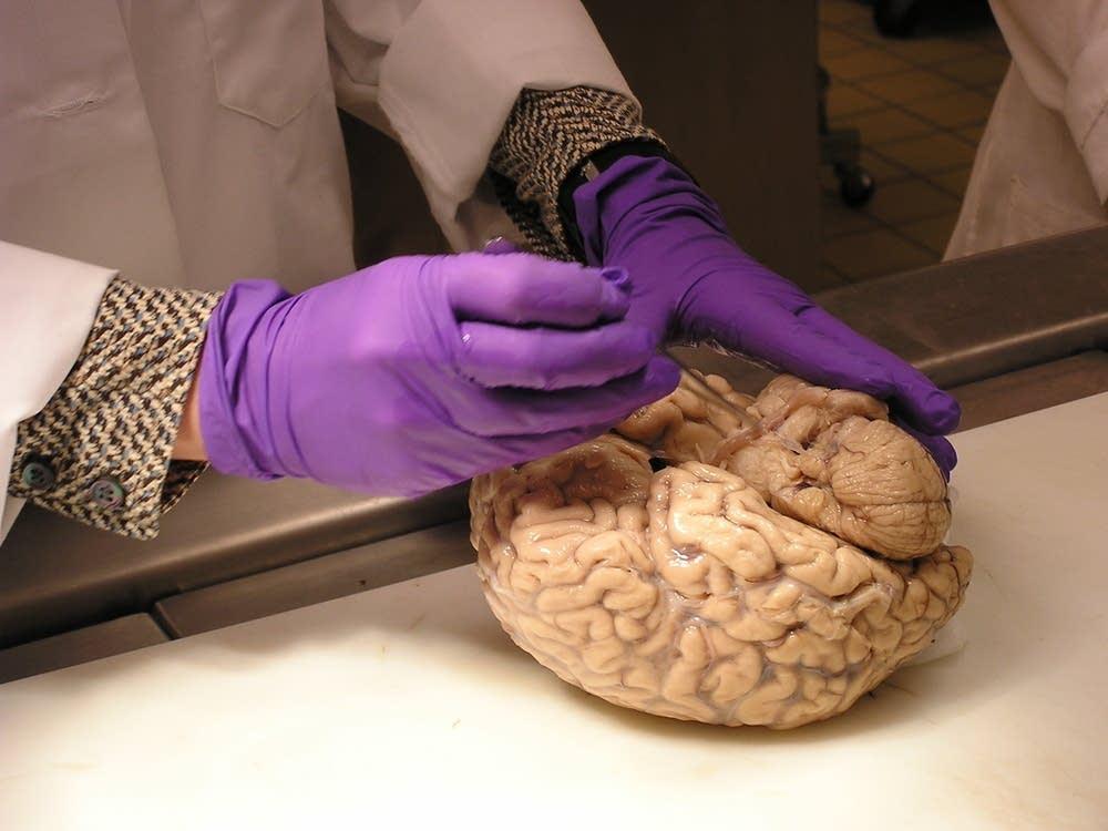 Healthy looking brain