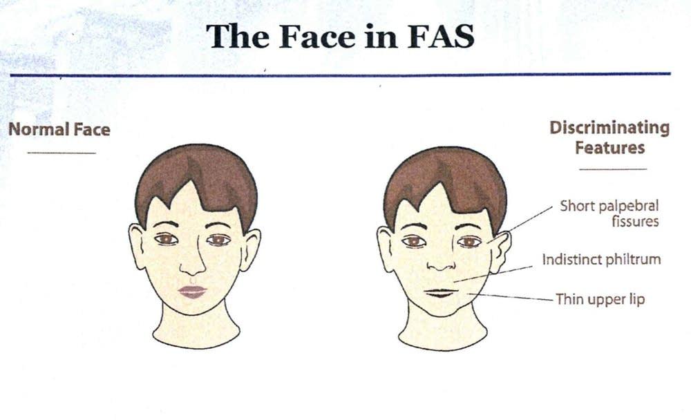 Facial deformaties of fetal alcohol syndrome