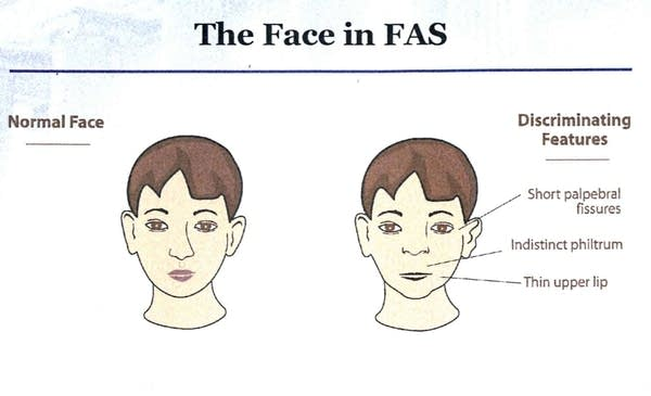 Facial comparison