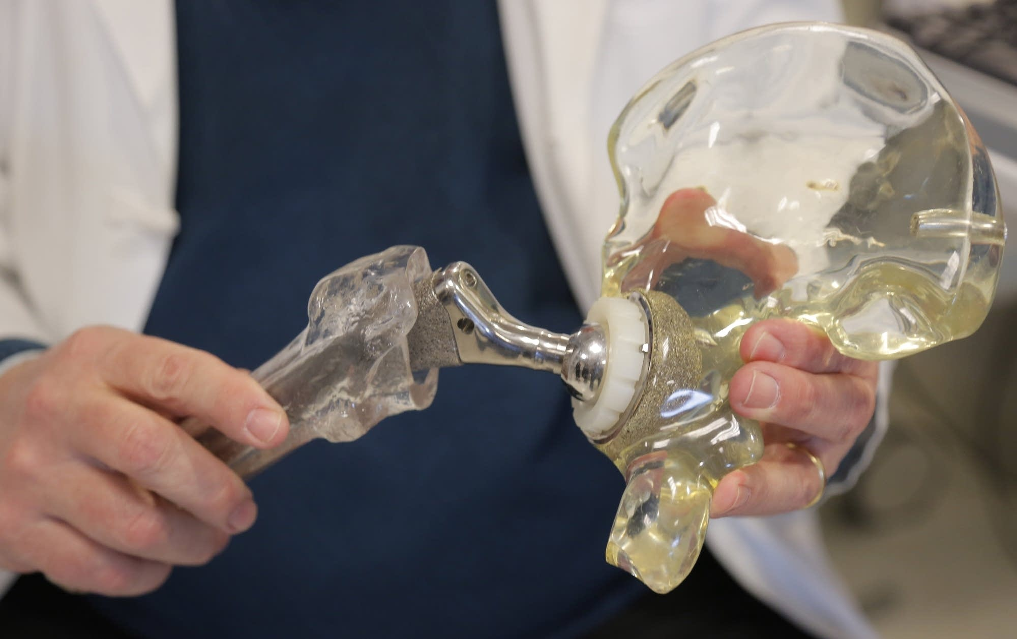 Dr. Joshua Jacobs holds a model of a cementless hip replacement.
