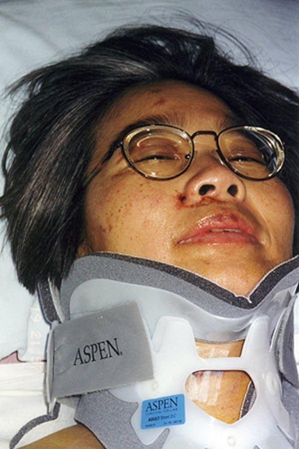 Immediate surgery