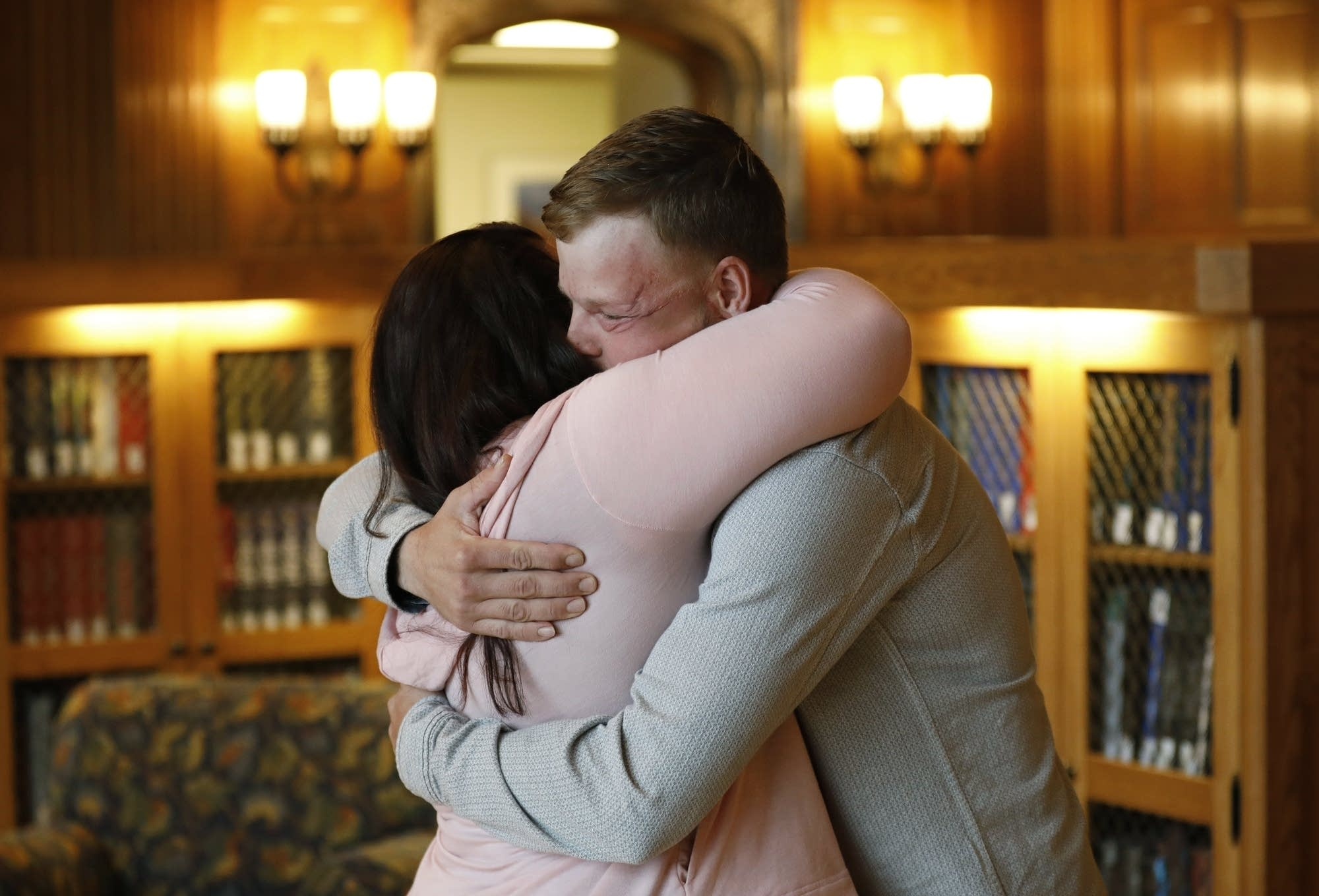 Lilly Ross, left, hugs face transplant recipient Andy Sandness.