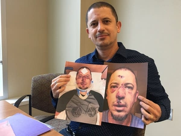 A man holds pictures of himself