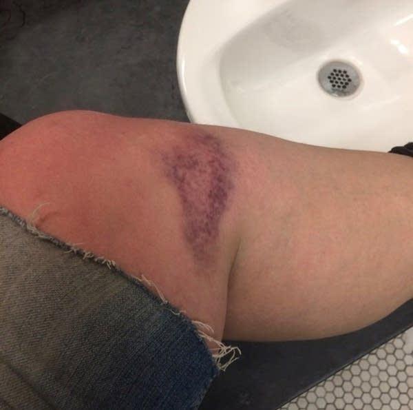 Sarah Salisbury shows her bruise from carrying statue between scenes.