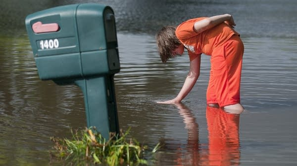 Logan Krevchuck, 14, puts his hand in a whirlpool.