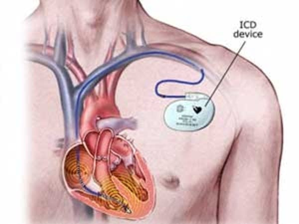Defibrillator diagram