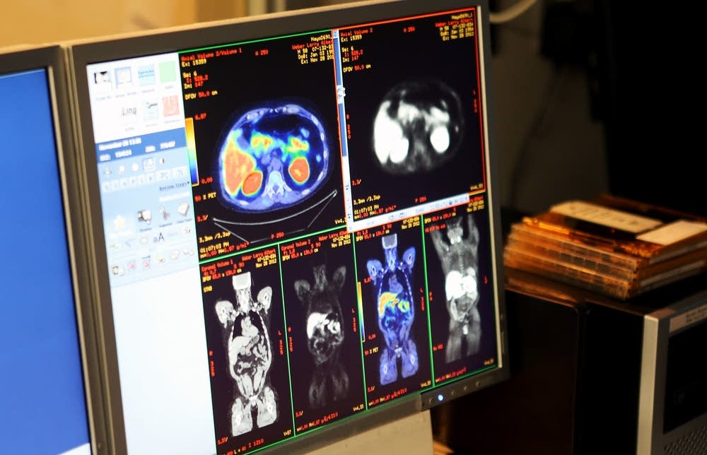 PET scan images
