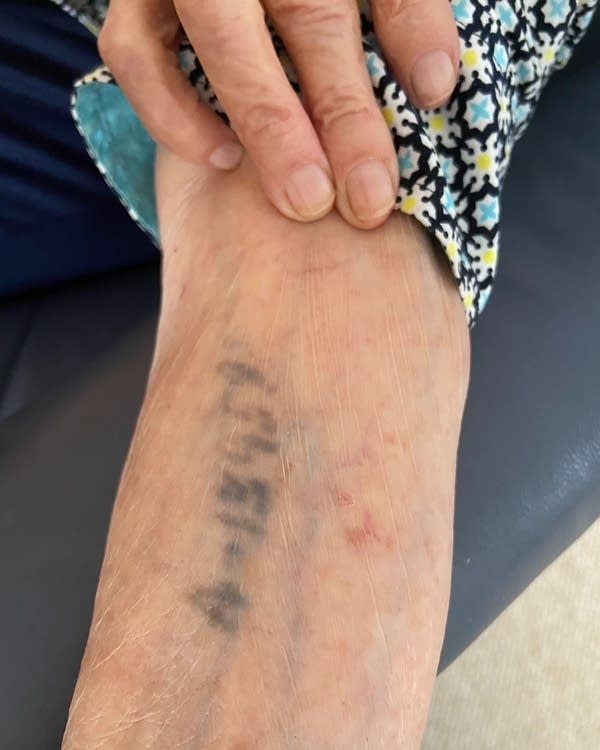Judy Baron bears the number Nazis tattooed on her arm at Auschwitz in 1944