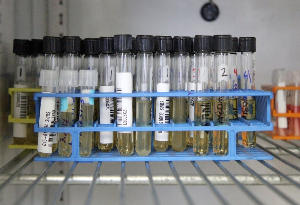 Avian influenza testing samples