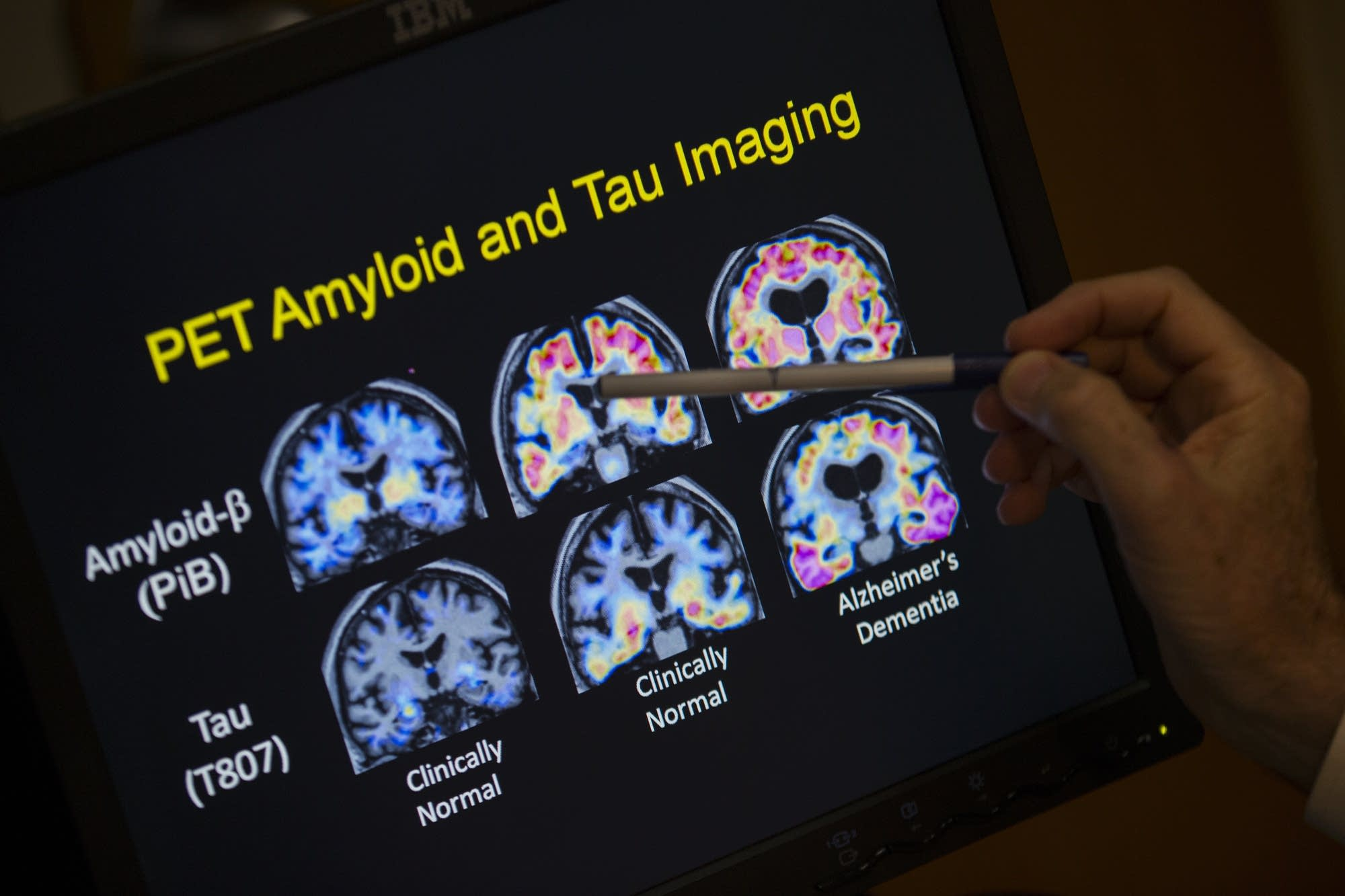 PET scan results that are part of a study on Alzheimer's disease.