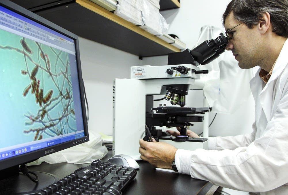 Looking for meningitis-causing fungus