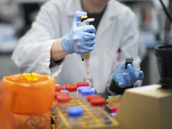A researcher works in a lab that is developing testing for COVID-19