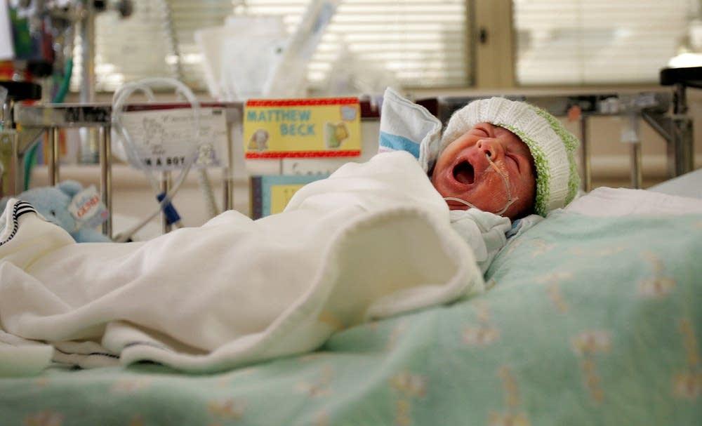 Premature baby