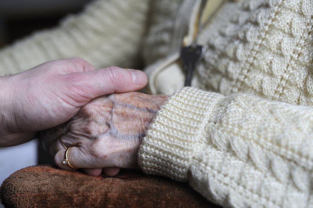 A woman, suffering from Alzheimer's