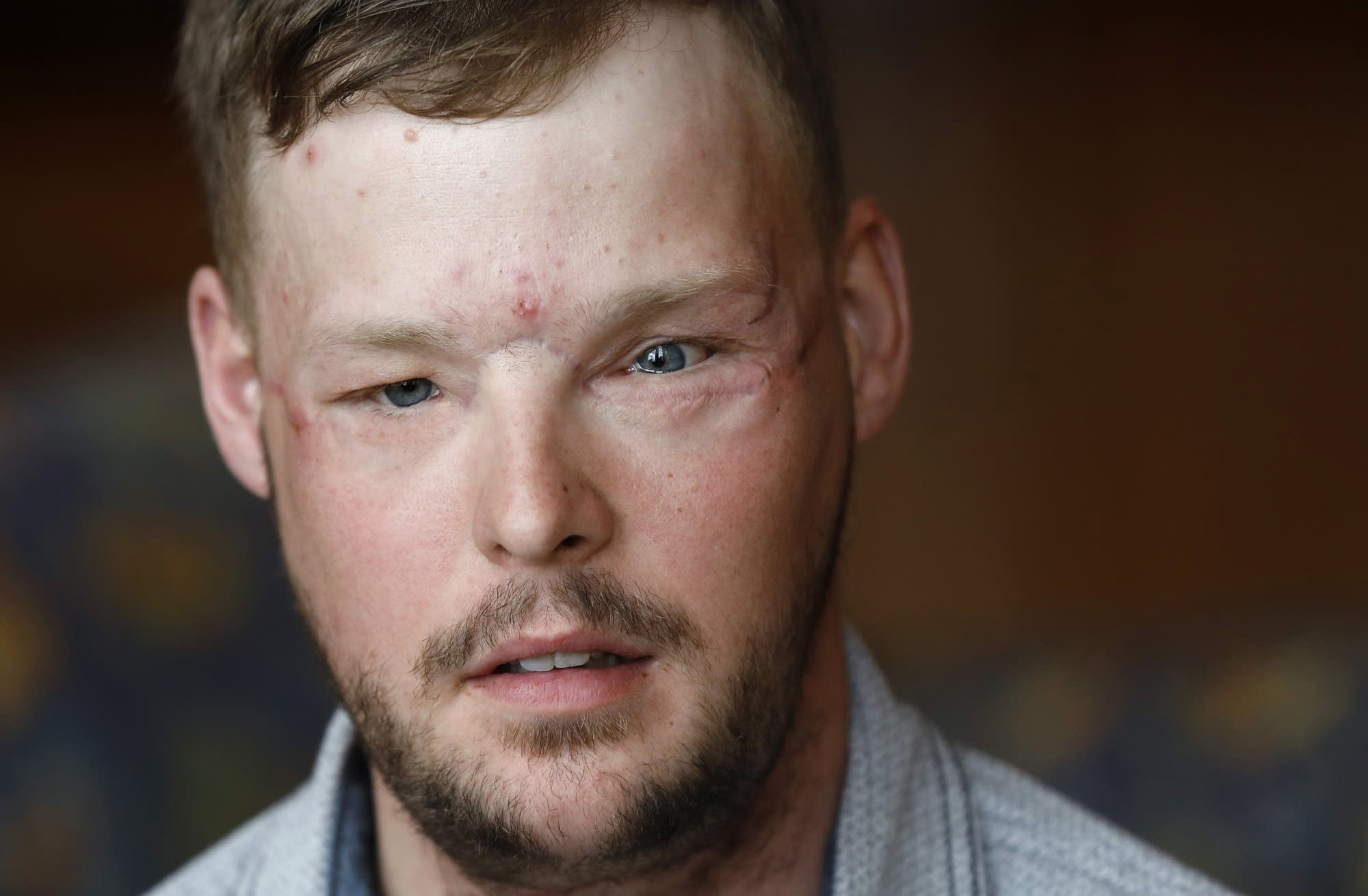 Face transplant recipient Andy Sandness.