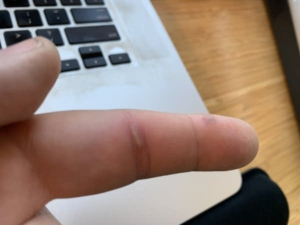 A white man's swollen index finger with scar tissue from an old splinter