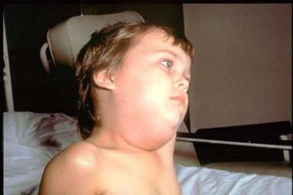 Child with mumps