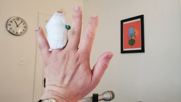 White man's hand with bandaged ring finger and green pin sticking out