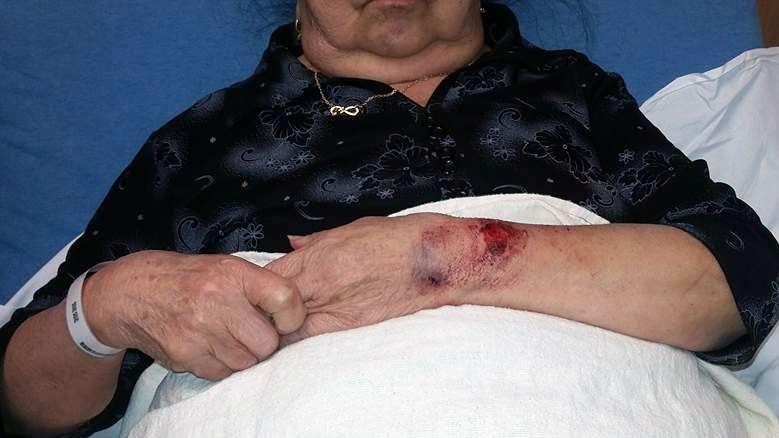 Choua Xiong, 81, is recovering being bitten by a police dog Sunday.