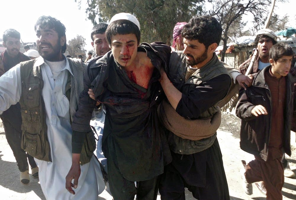 Afghan demonstrators help a wounded man