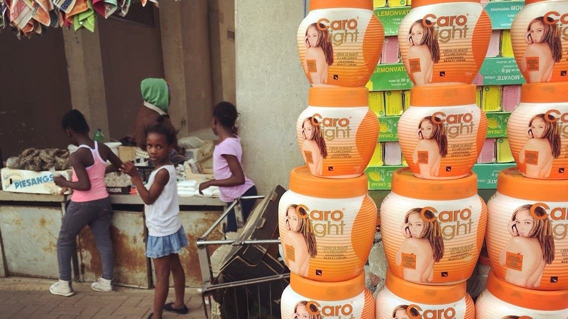 Skin-bleaching beauty products for sale in a South African community.