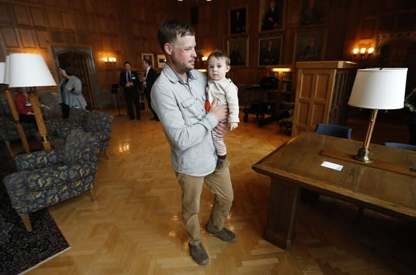 Face transplant recipient Andy Sandness holds 17-month-old Leonard Ross.
