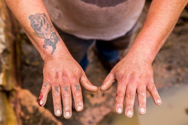 Travis Erickson's hands