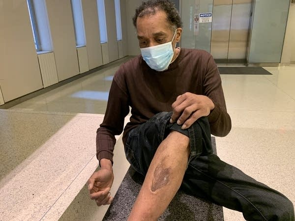 A man shows his injury to his leg.