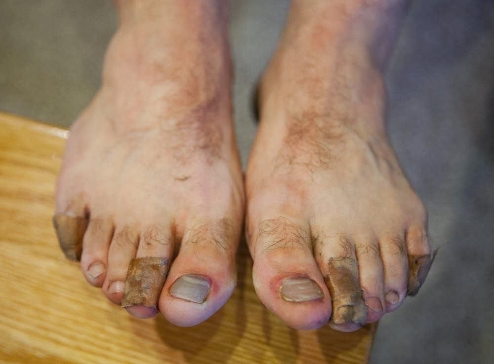 Lee Peyton's blistered and bruised feet