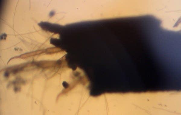 Caddisfly larva through a microscope