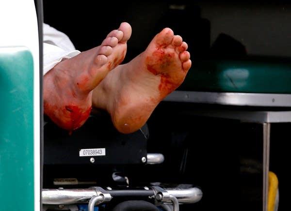 Blood on feet