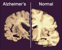 Alzheimer's brain vs. normal brain