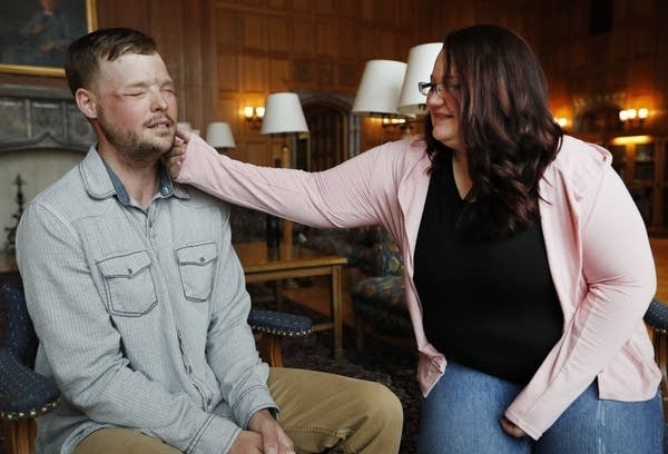 Lilly Ross feels the beard of face transplant recipient Andy Sandness.