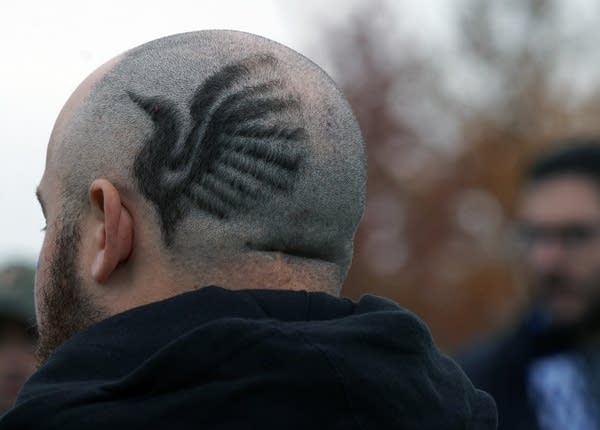Hair grows in the shape of a loon on a bald man's head.